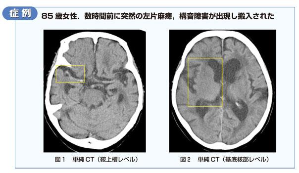症例 85歳女性.数時間前に突然の左片麻痺,構音障害が出現し搬入された