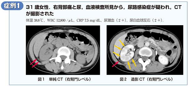 第3回 急性腹症のCT読影をスキルアップ!~腎臓の造影不良域 ...
