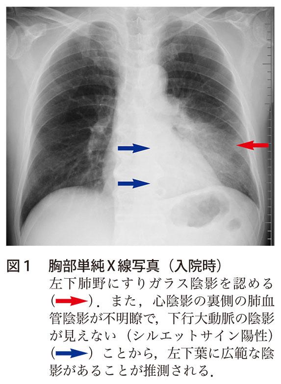肺炎 治療 レジオネラ
