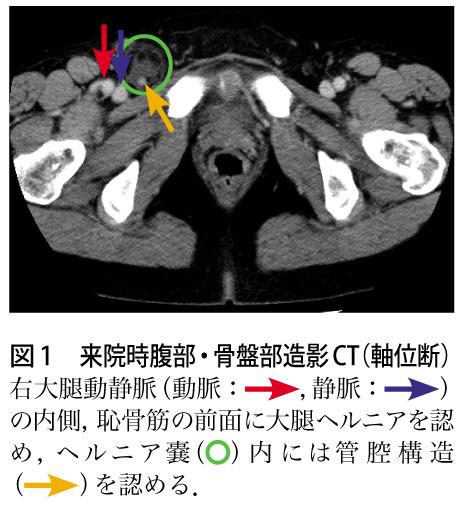 靭帯 鼠径 【姿勢改善】股関節伸展の盲点 内臓と鼠径靭帯のつながり