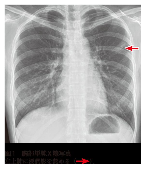 肺に影があるとき考えられる病気・再検査の必要性 …