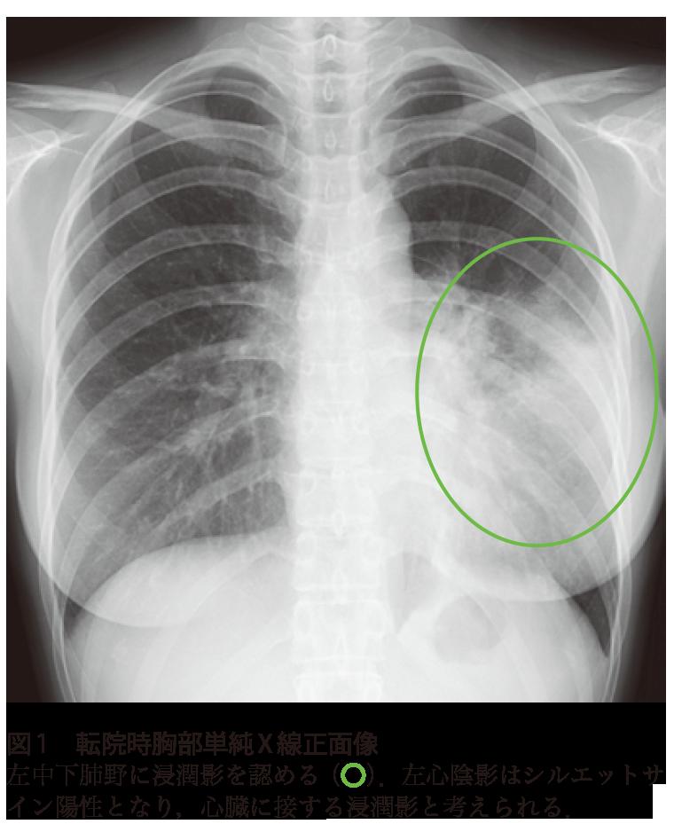 マイコプラズマ 肺炎 診断