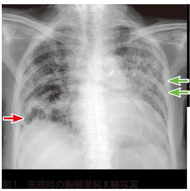 肺炎 乾湿 性 間質性肺炎の診断と治療―確かな診断と治療で治すことも可能