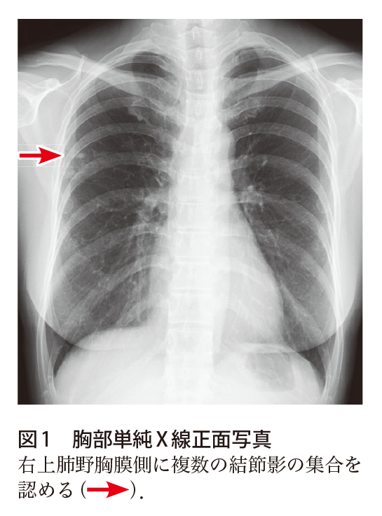 治療 気管支 拡張 症